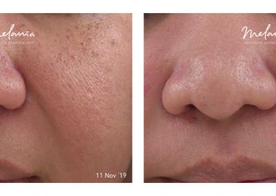 Picosure Freckles, Pores, & Uneven Skin Tone
