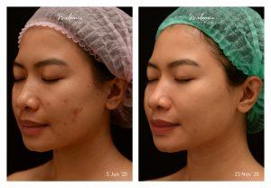 Picosure Acne Marks, Pores, & Uneven Skin Tone