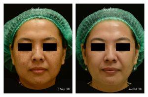 Picosure Freckles, Pores, and Uneven Skin Tone